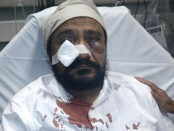 "Inderjit Singh Mukker was hospitalised after being punched in the face by an assailant who allegedly yelled, ""Terrorist! . . . Go back to your country."" Credit: Sikh Coalition."